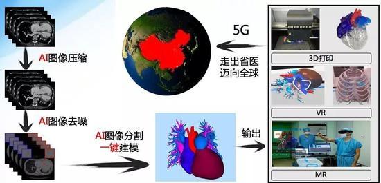 手术过程:VR演示补心术